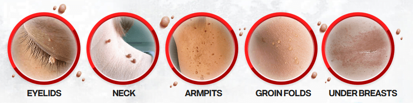 DermaCorrect skin tag remover solution is designed to disarm a variety of different tags. Where Can You Apply It.